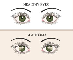 Elder Care in Southport IN: Dealing with Glaucoma