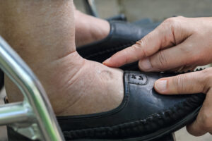 Home Health Care in Westfield IN: Foot Pain